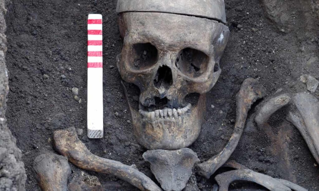 One of the skeletons' hands showed signs of bare-knuckle fighting.