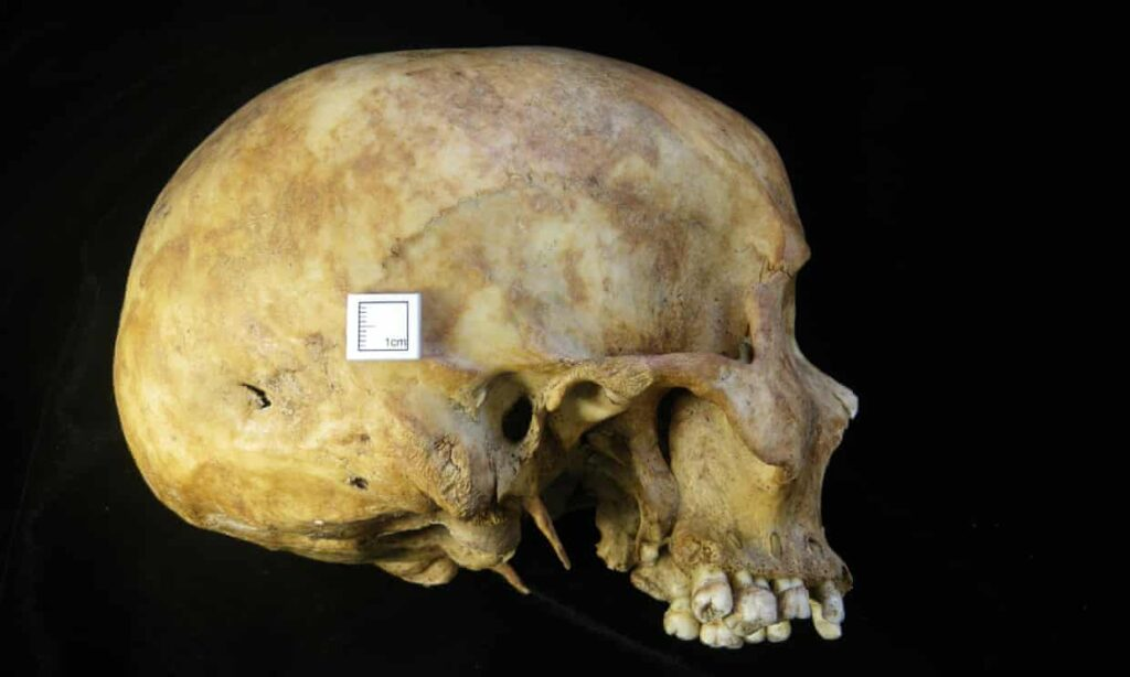 The skull of a female who died as a result of a stab wound to the head. Photograph: Wessex Archaeology